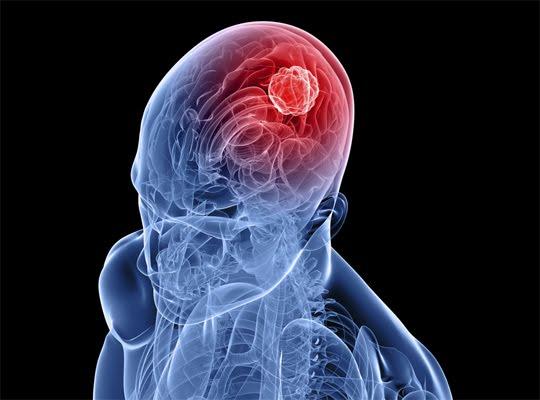 Kanker Otak Stadium 4