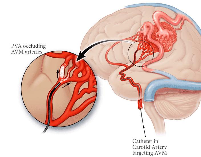 Pembuluh Darah Otak Pecah